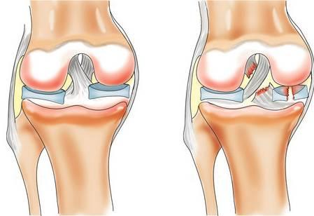 Что делать, если от езды на велосипеде болят колени