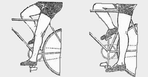 Причины возникновения боли в коленях